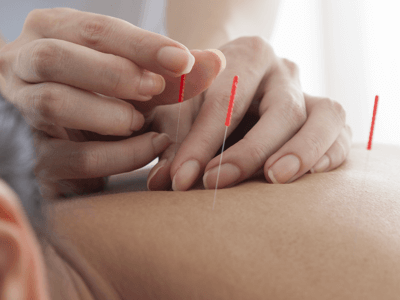 Looking for a degree programme in Acupuncture?